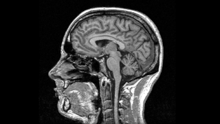 brain-068567-edited.png
